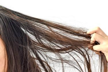 Saç Neden Yağlanır? Saç yağlanmasına ne iyi gelir?