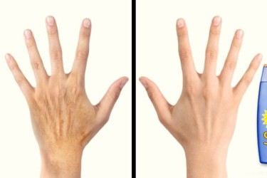 Ellerinizi 10 Yıl Gençleştirmenin 5 Sırrı