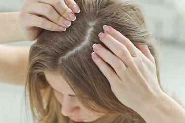 Saçlarda Kepeklenme Nasıl Önlenir ?